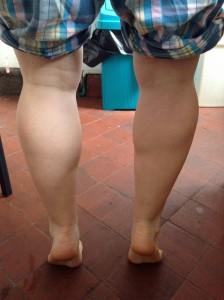 The original legs. May 2013.